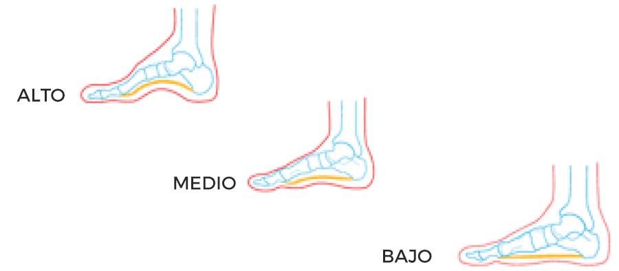 Tipo de pie en relación con el arco plantar y el empeine
